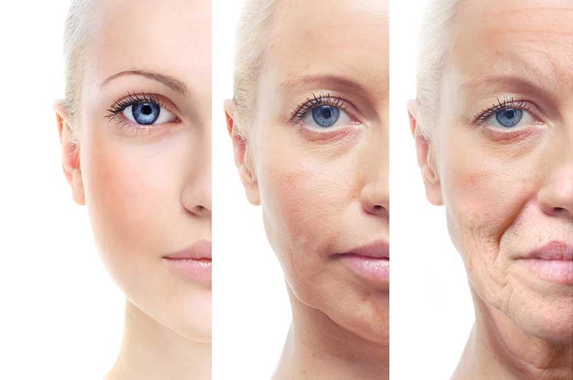 Evolución del efecto del envejecimiento en la piel.