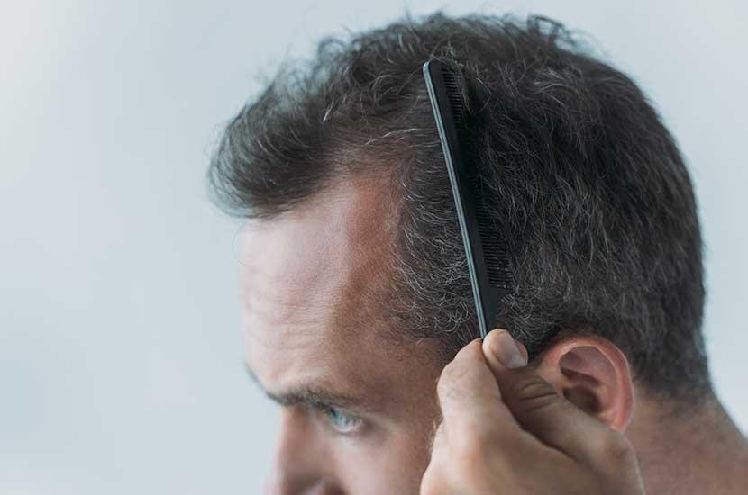 Vitahair Max puede ayudarte a tener un cabello más saludable