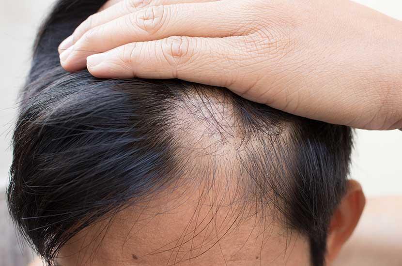 Hay muchas causas posibles de caída del cabello.