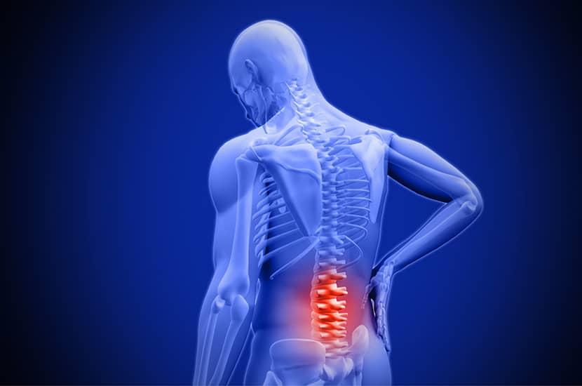 Las causas más comunes de dolor de espalda son la degeneración y el estrés.