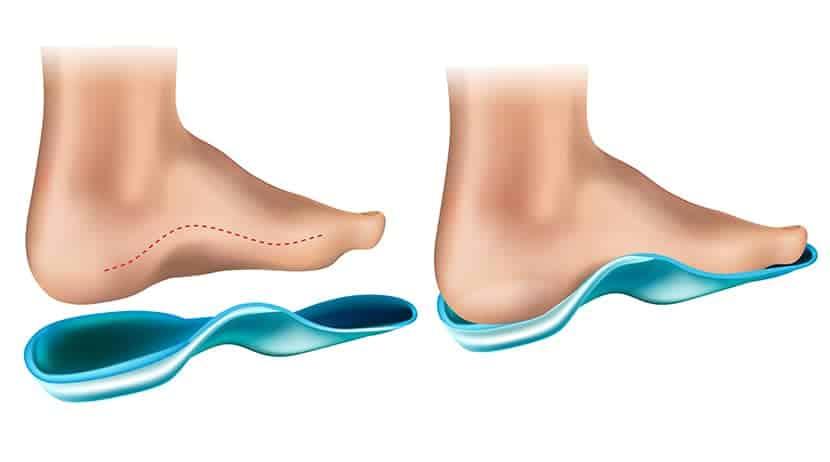 Es posible insertar plantillas de promagnetin en cualquier tipo de calzado