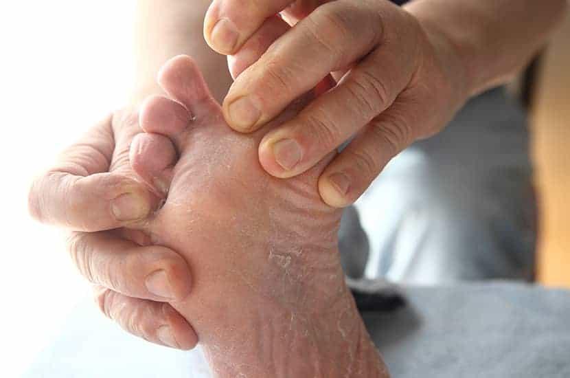 El pie de atleta es una afección causada por hongos.