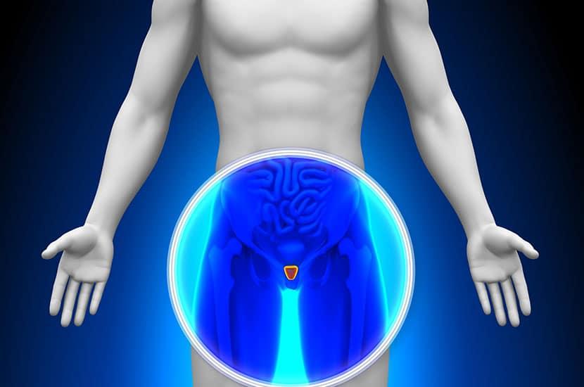 La hiperplasia prostática es una afección común en los hombres.