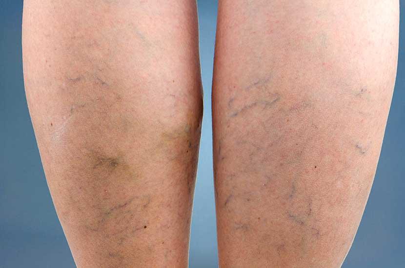 """Las venas varicosas se forman cuando la sangre en las piernas """"se estanca""""."""